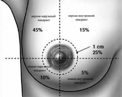 разделение молочной железы